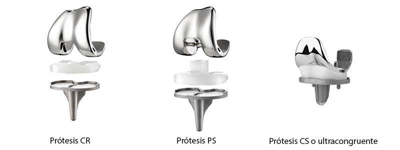 protesis-rodilla