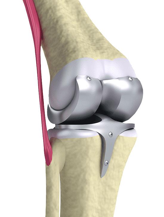 rodilla-protesis